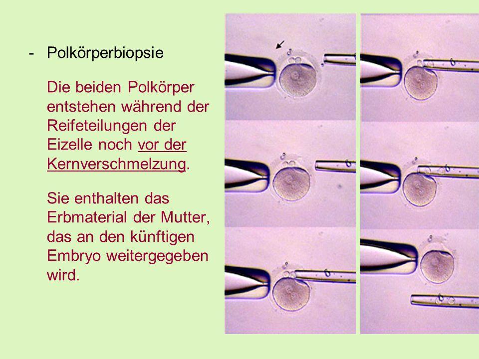 -Polkörperbiopsie Die beiden Polkörper entstehen während der Reifeteilungen der Eizelle noch vor der Kernverschmelzung. Sie enthalten das Erbmaterial