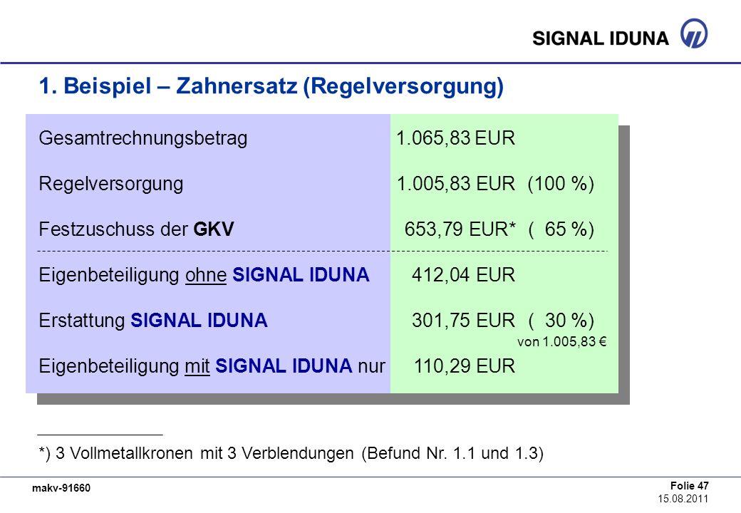 makv-91660 Folie 47 15.08.2011 1. Beispiel – Zahnersatz (Regelversorgung) Gesamtrechnungsbetrag1.065,83 EUR Regelversorgung1.005,83 EUR (100 %) Festzu