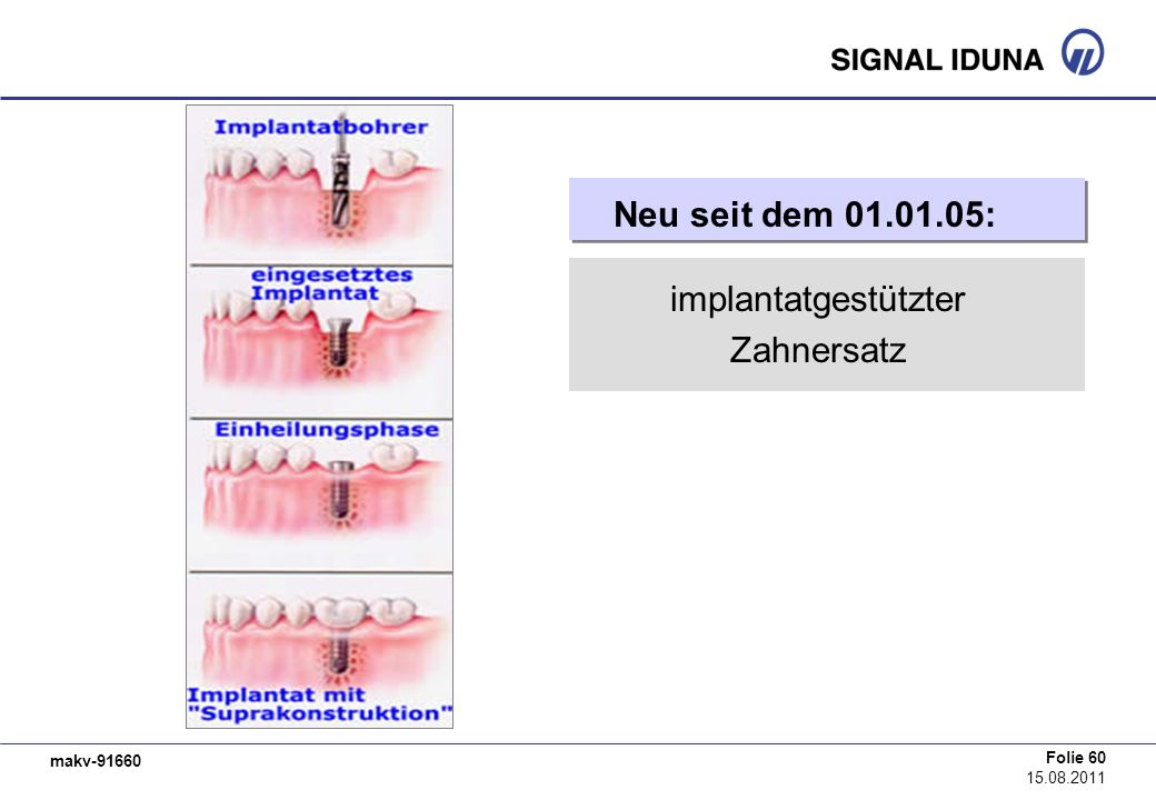 makv-91660 Folie 60 15.08.2011 Neu seit dem 01.01.05: implantatgestützter Zahnersatz