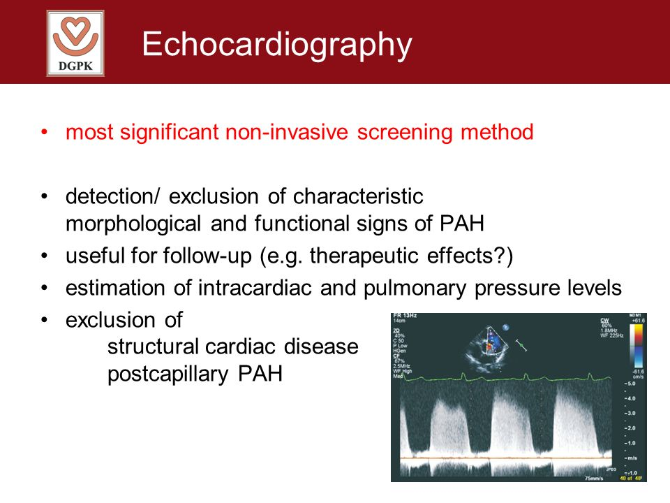 Echocardiography most significant non-invasive screening method detection/ exclusion of characteristic morphological and functional signs of PAH usefu