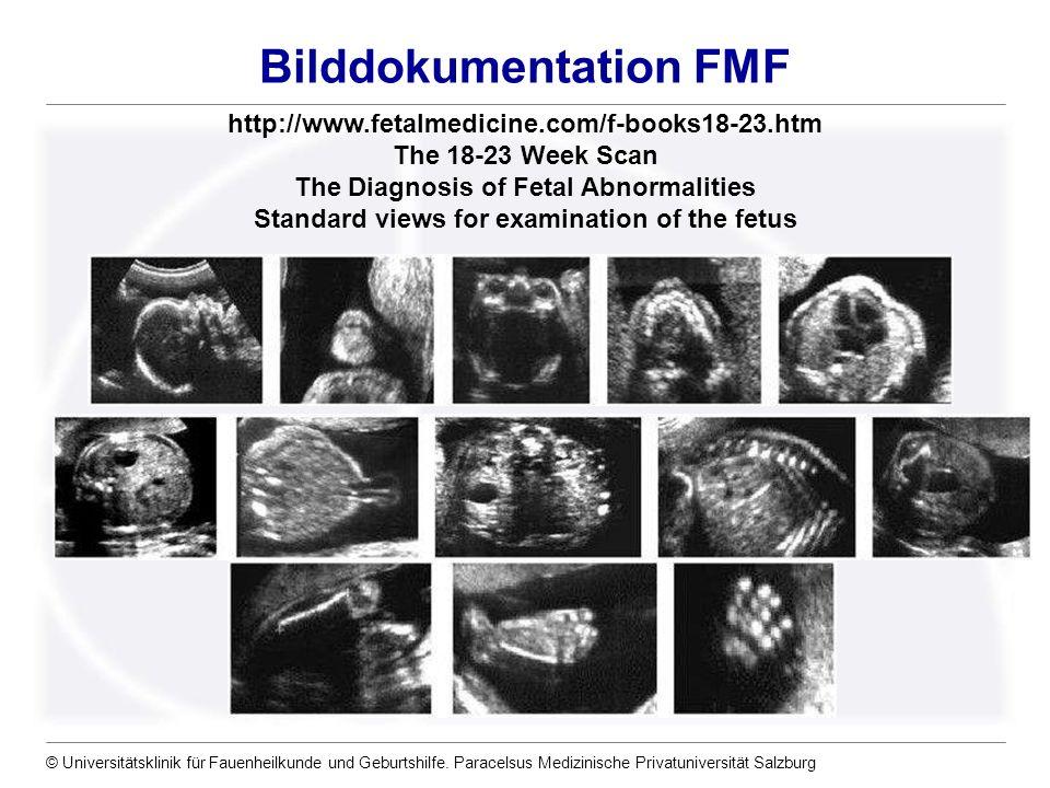 © Universitätsklinik für Fauenheilkunde und Geburtshilfe. Paracelsus Medizinische Privatuniversität Salzburg Bilddokumentation FMF – http://www.fetalm