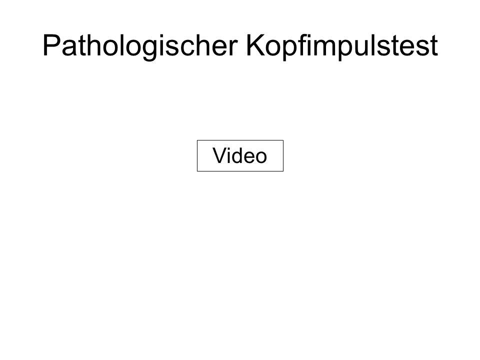 Pathologischer Kopfimpulstest Video