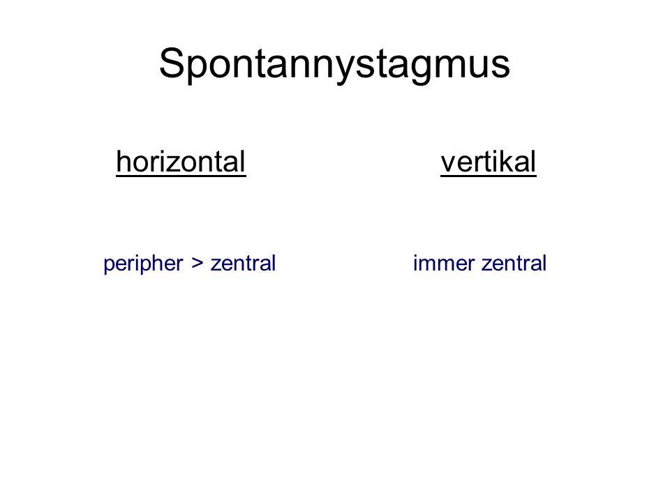 Spontannystagmus horizontalvertikal peripher > zentralimmer zentral
