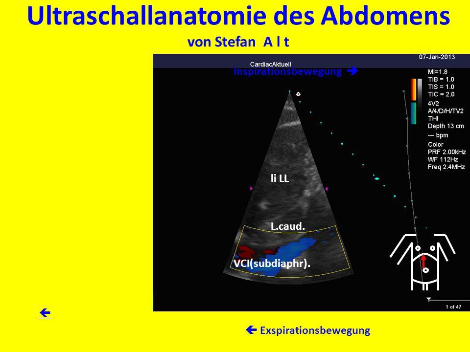 Ultraschallanatomie des Abdomens von Stefan A l t li LL L.caud. VCI(subdiaphr). Inspirationsbewegung Exspirationsbewegung