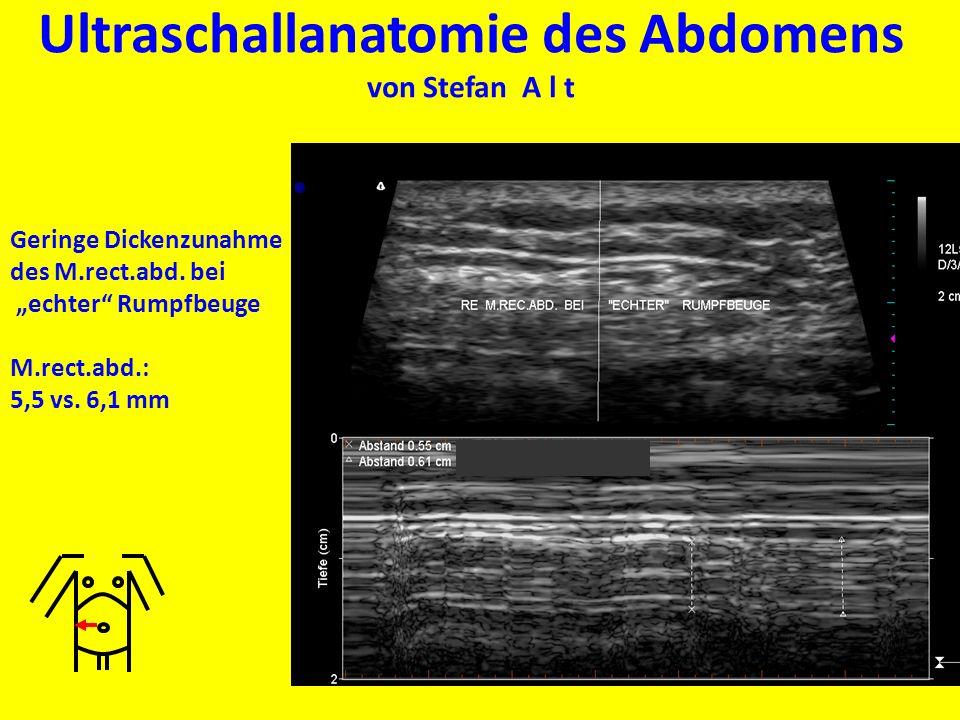Ultraschallanatomie des Abdomens von Stefan A l t Geringe Dickenzunahme des M.rect.abd. bei echter Rumpfbeuge M.rect.abd.: 5,5 vs. 6,1 mm