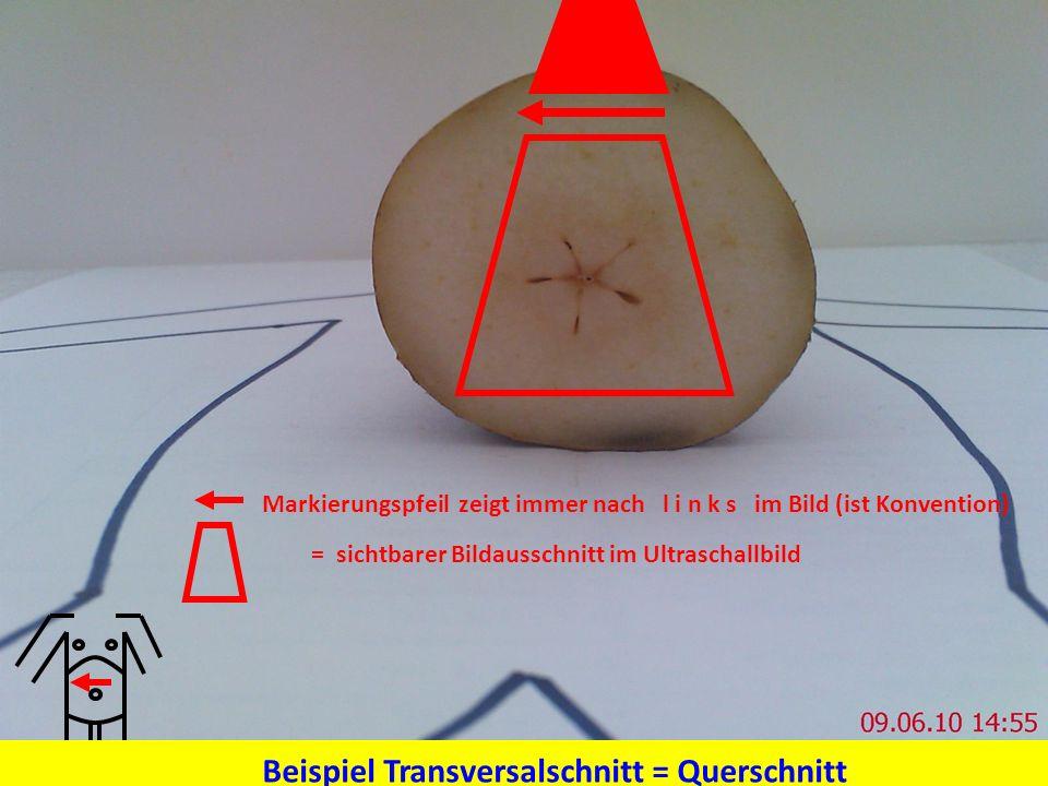 = sichtbarer Bildausschnitt im Ultraschallbild Markierungspfeil zeigt immer nach l i n k s im Bild (ist Konvention) Beispiel Transversalschnitt = Quer