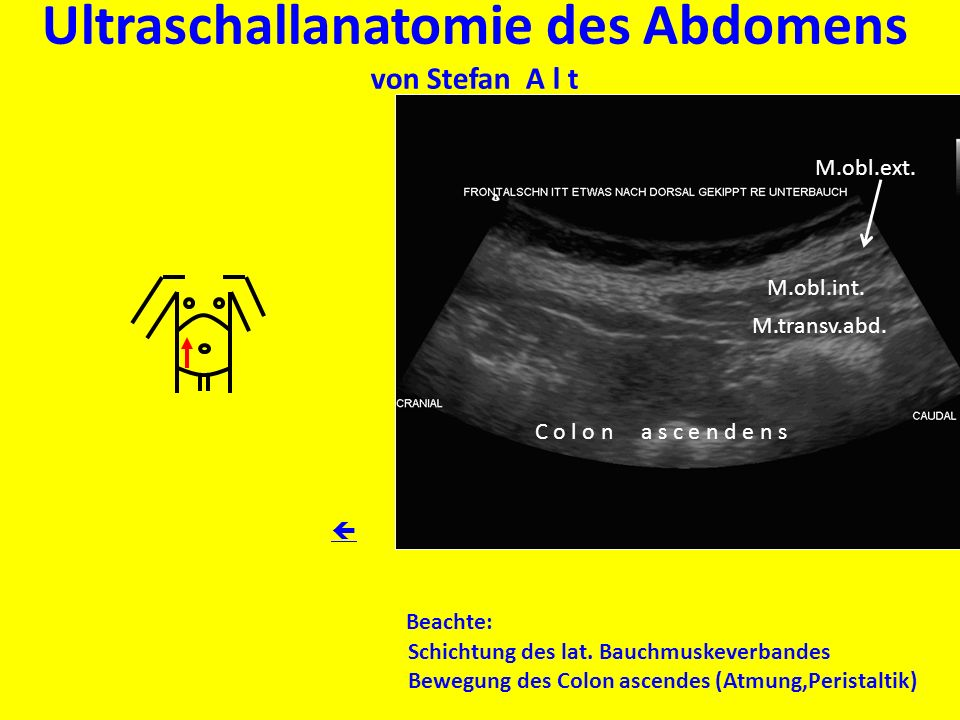 Ultraschallanatomie des Abdomens von Stefan A l t Beachte: Schichtung des lat. Bauchmuskeverbandes Bewegung des Colon ascendes (Atmung,Peristaltik) M.