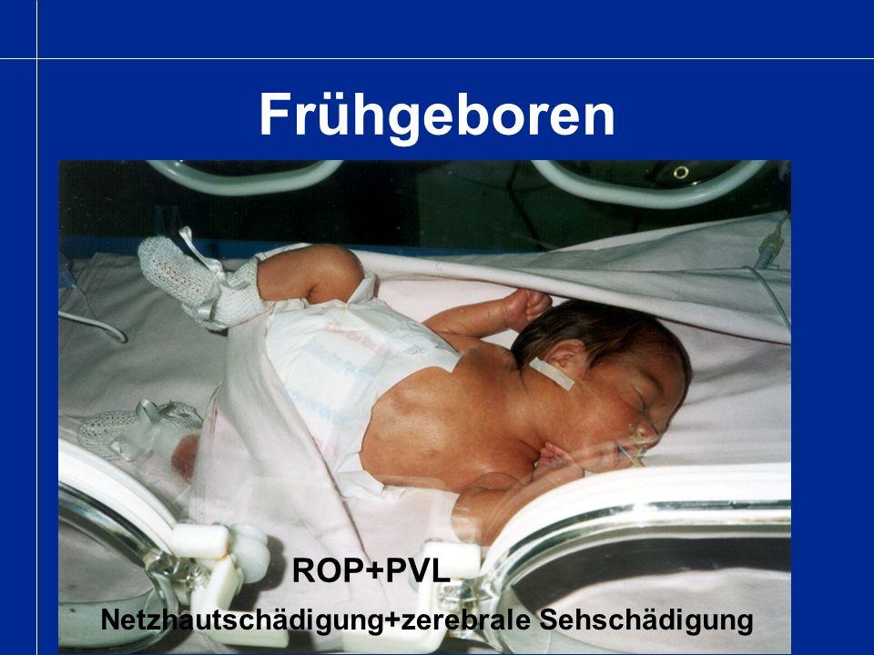Spätere Betreuung Kleinkinder mit auffälligen Läsionen - Mikrophthalmie, Kolobom, Lebers Amauros Kinder mit später diagnostisierten Läsionen - Netzhautdegenerationen, RP - zerebrale Sehschädigungen - mehrfachbehinderte Kinder