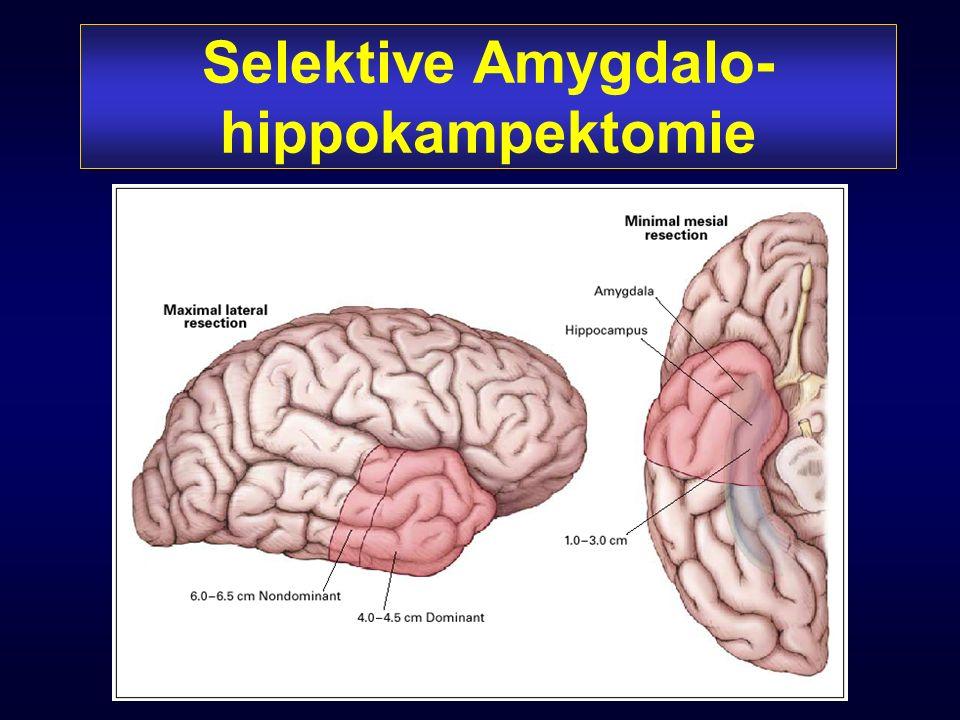 Selektive Amygdalo- hippokampektomie Grafik?