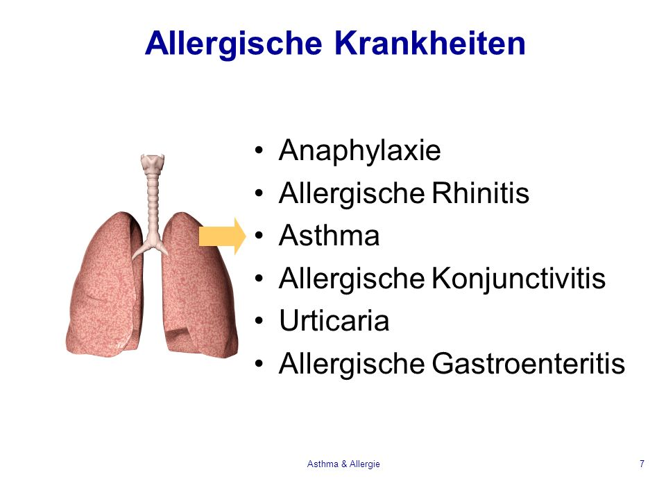 Asthma & Allergie7 Allergische Krankheiten Anaphylaxie Allergische Rhinitis Asthma Allergische Konjunctivitis Urticaria Allergische Gastroenteritis