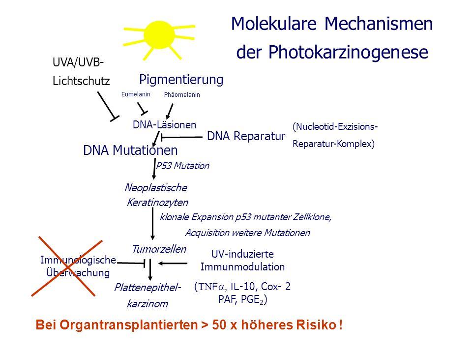 DNA Mutationen Neoplastische Keratinozyten UV-induzierte Immunmodulation ( F IL -10, Cox- 2 PAF, PGE 2 ) Plattenepithel- karzinom DNA Reparatur Eumela
