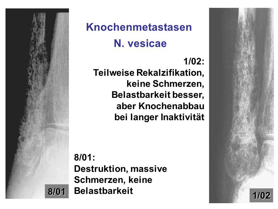 Knochenmetastasen N. vesicae 8/01 1/02 8/01: Destruktion, massive Schmerzen, keine Belastbarkeit 1/02: Teilweise Rekalzifikation, keine Schmerzen, Bel