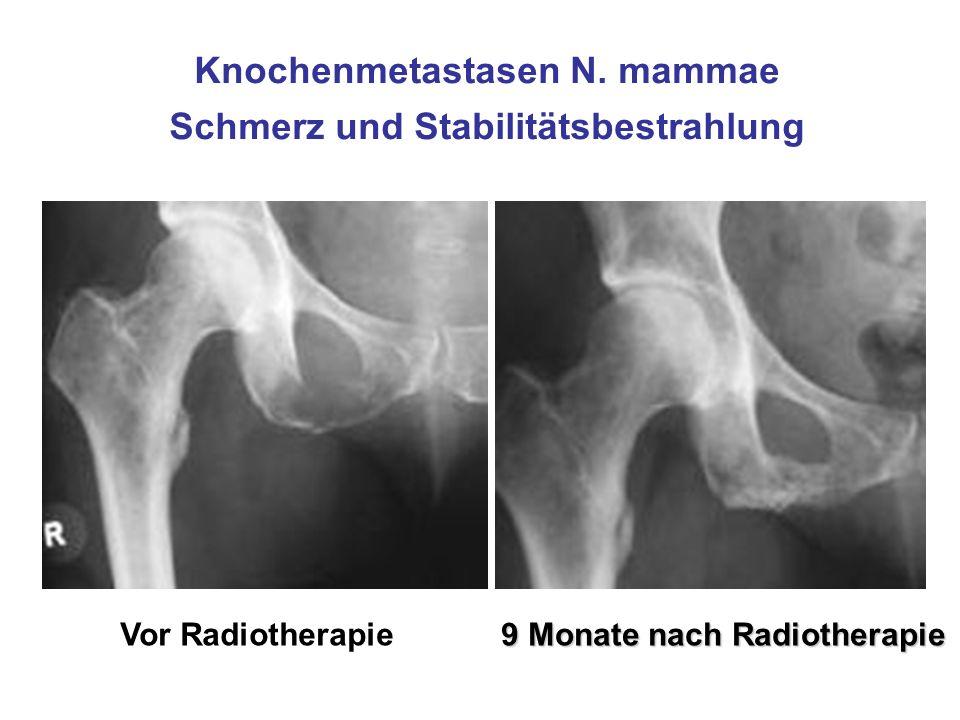 Knochenmetastasen N. mammae Schmerz und Stabilitätsbestrahlung Vor Radiotherapie 9 Monate nach Radiotherapie