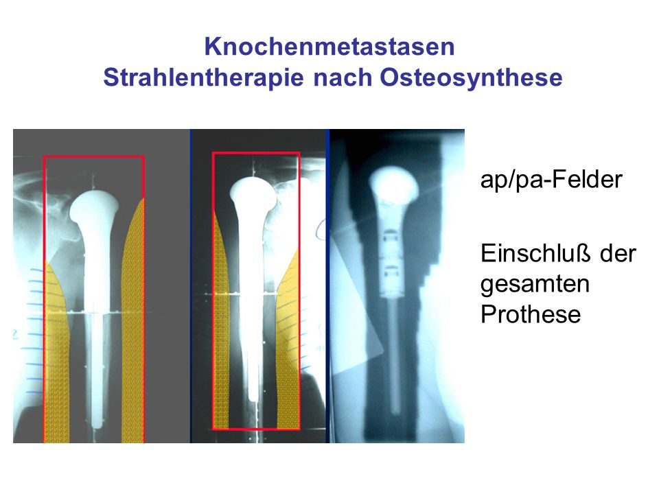 Knochenmetastasen Strahlentherapie nach Osteosynthese ap/pa-Felder Einschluß der gesamten Prothese