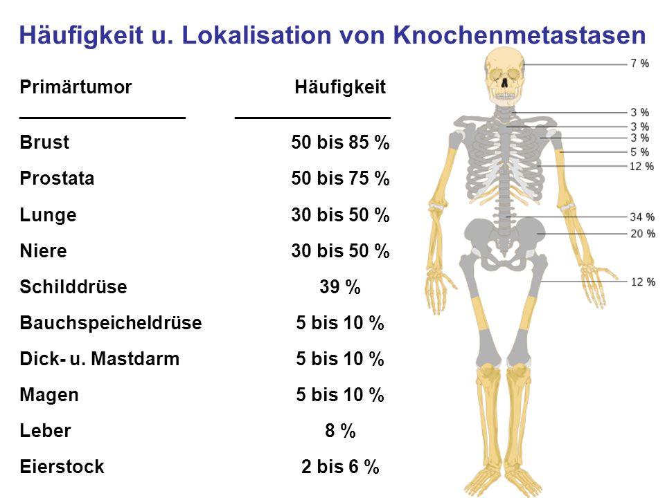 Häufigkeit u. Lokalisation von Knochenmetastasen Primärtumor ________________ Häufigkeit _______________ Brust50 bis 85 % Prostata50 bis 75 % Lunge30