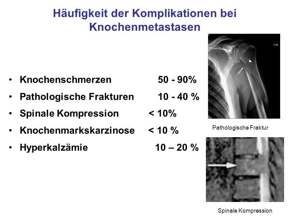 Häufigkeit der Komplikationen bei Knochenmetastasen Knochenschmerzen 50 - 90% Pathologische Frakturen 10 - 40 % Spinale Kompression < 10% Knochenmarks