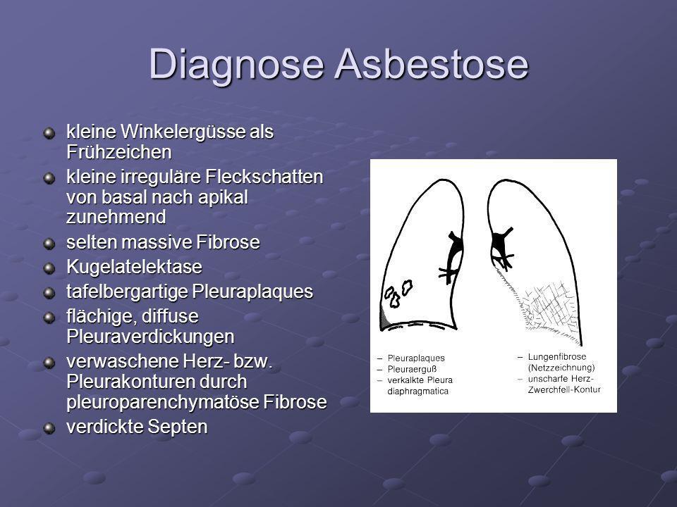 Diagnose Asbestose kleine Winkelergüsse als Frühzeichen kleine irreguläre Fleckschatten von basal nach apikal zunehmend selten massive Fibrose Kugelat