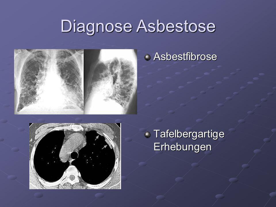 Diagnose Asbestose Asbestfibrose Tafelbergartige Erhebungen