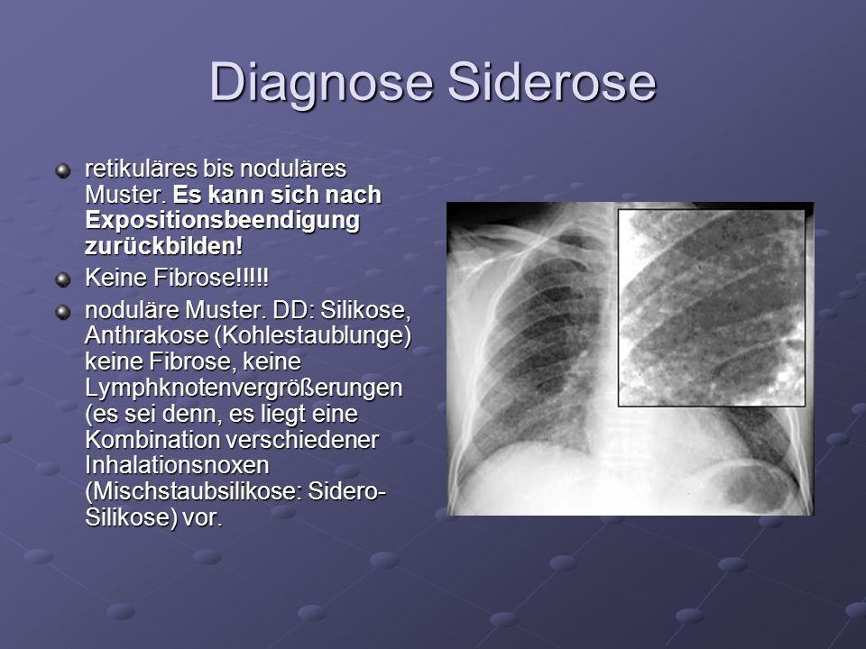 Diagnose Siderose retikuläres bis noduläres Muster. Es kann sich nach Expositionsbeendigung zurückbilden! Keine Fibrose!!!!! noduläre Muster. DD: Sili