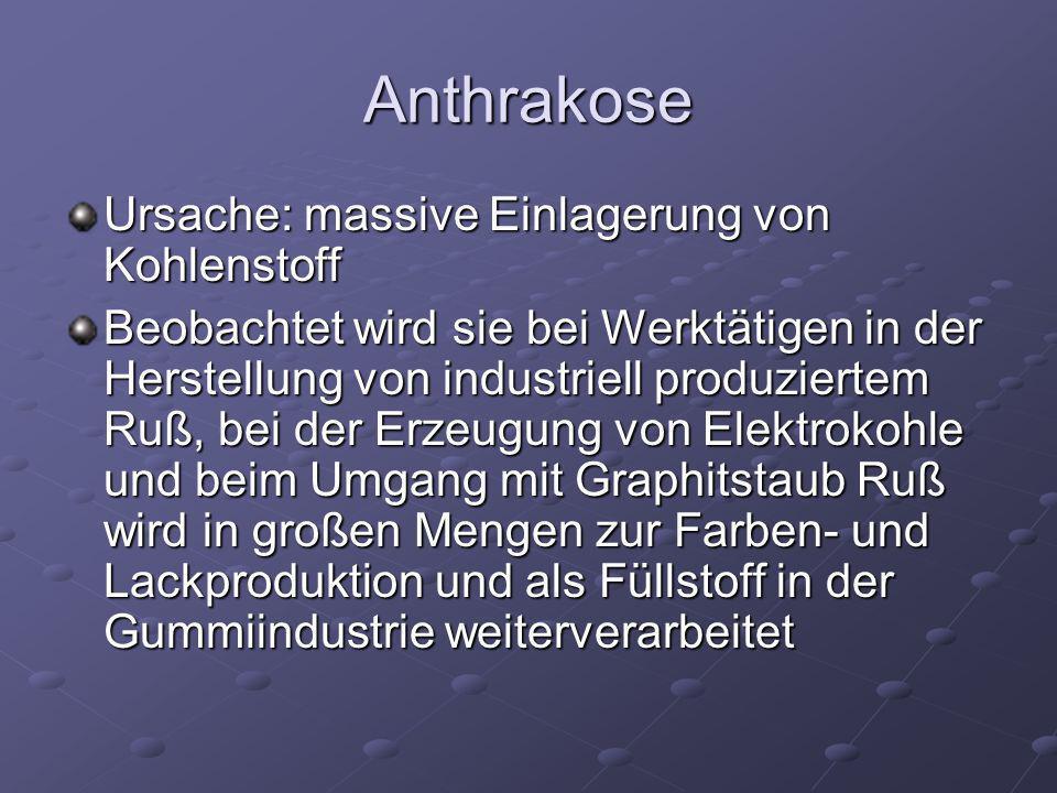 Anthrakose Ursache: massive Einlagerung von Kohlenstoff Beobachtet wird sie bei Werktätigen in der Herstellung von industriell produziertem Ruß, bei d