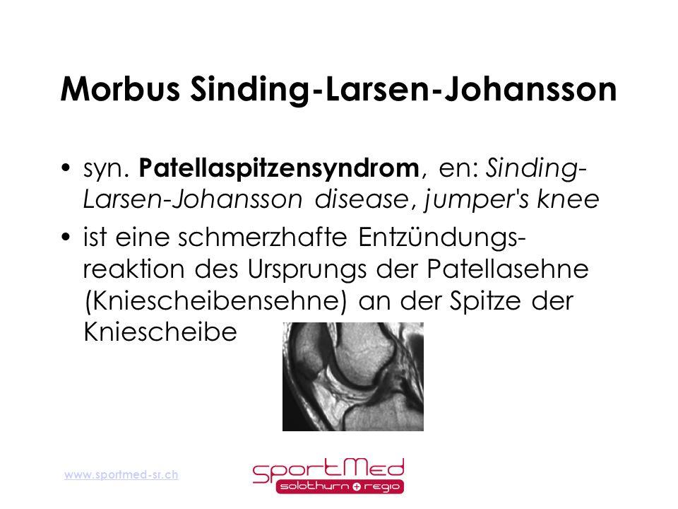 www.sportmed-sr.ch Morbus Sinding-Larsen-Johansson syn. Patellaspitzensyndrom, en: Sinding- Larsen-Johansson disease, jumper's knee ist eine schmerzha