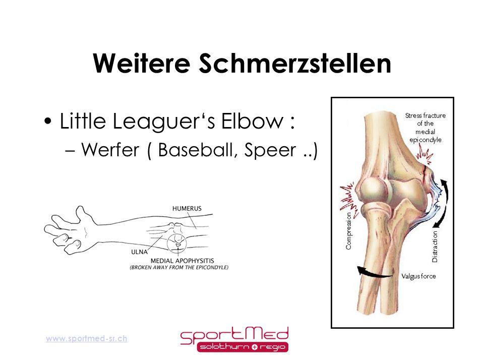 www.sportmed-sr.ch Weitere Schmerzstellen Little Leaguers Elbow : –Werfer ( Baseball, Speer..)