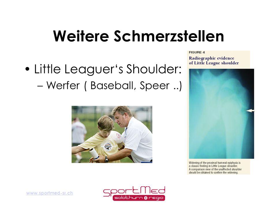 www.sportmed-sr.ch Weitere Schmerzstellen Little Leaguers Shoulder: –Werfer ( Baseball, Speer..)