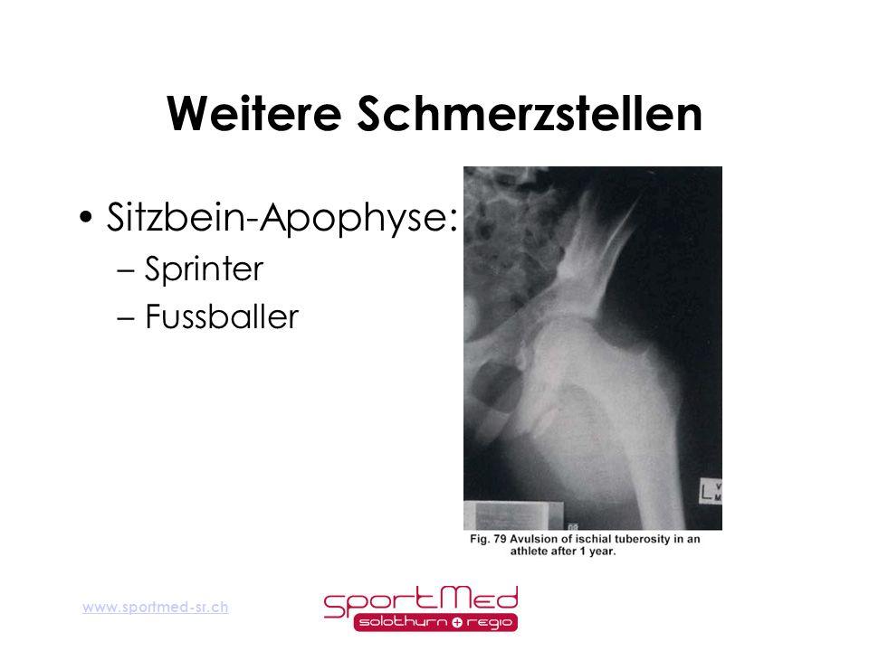 www.sportmed-sr.ch Weitere Schmerzstellen Sitzbein-Apophyse: –Sprinter –Fussballer