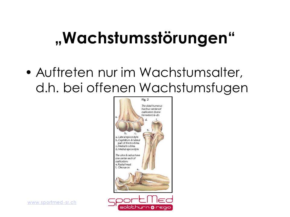 www.sportmed-sr.ch Wachstumsstörungen Auftreten nur im Wachstumsalter, d.h. bei offenen Wachstumsfugen