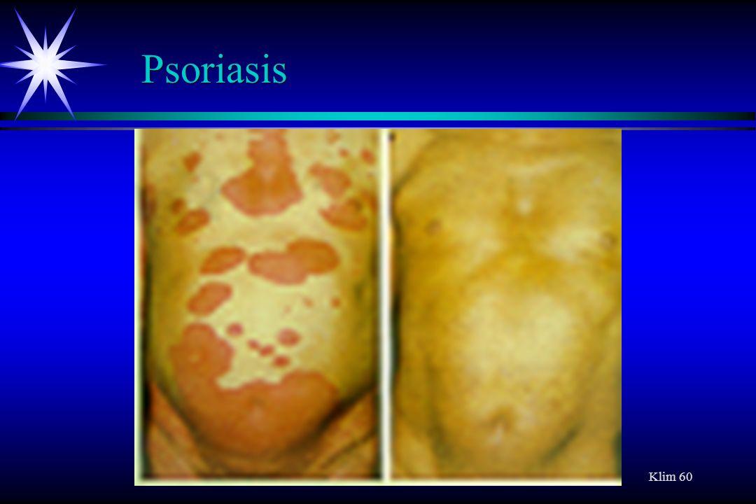Klim 60 Psoriasis
