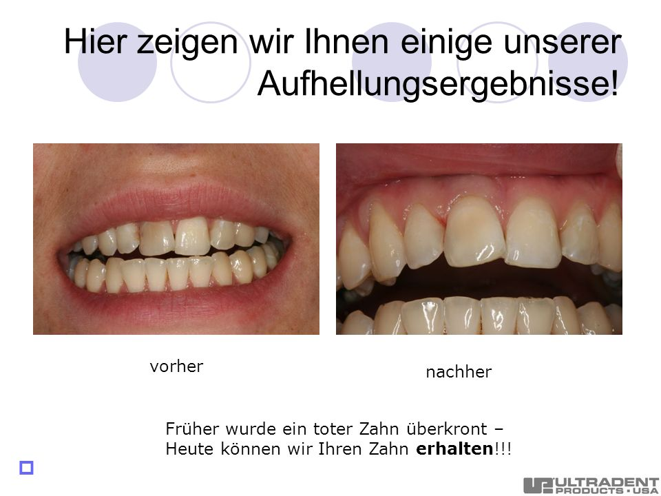 Hier zeigen wir Ihnen einige unserer Aufhellungsergebnisse! Früher wurde ein toter Zahn überkront – Heute können wir Ihren Zahn erhalten!!! nachher vo