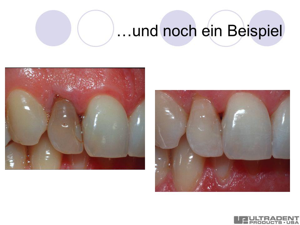 … sehen Sie den Unterschied.Nach einer Zahnreinigung mit anschließender Aufhellung.