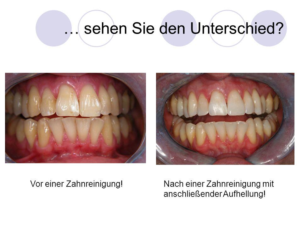 … sehen Sie den Unterschied? Nach einer Zahnreinigung mit anschließender Aufhellung! Vor einer Zahnreinigung!