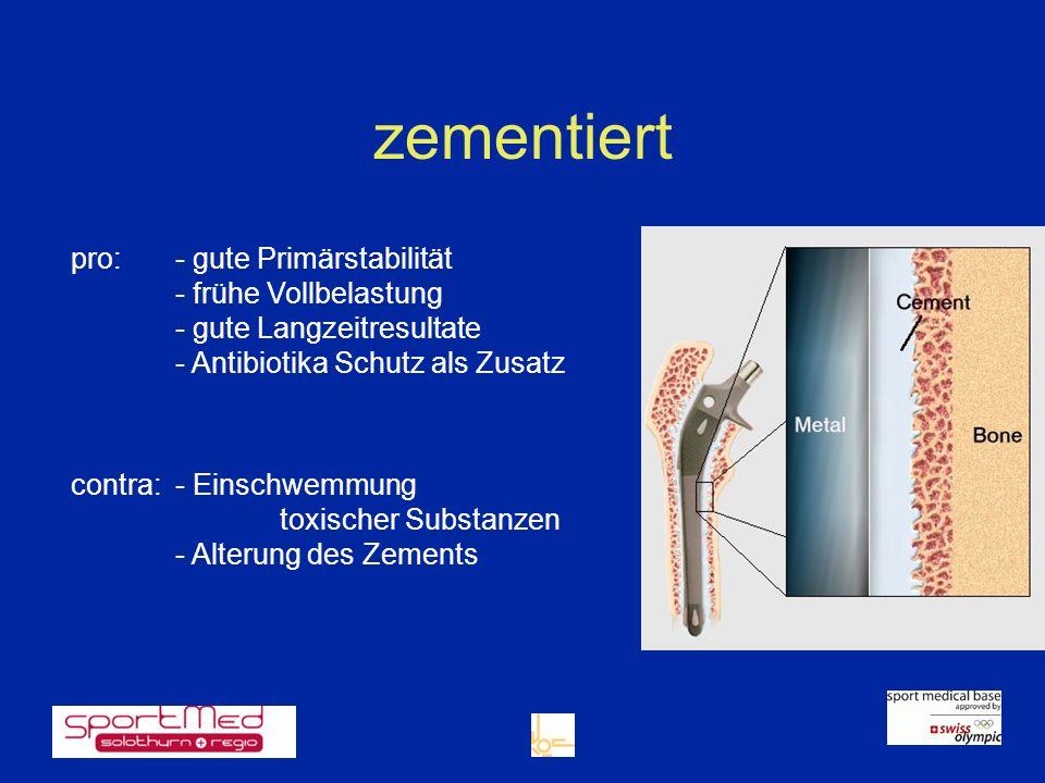 zementiert pro:- gute Primärstabilität - frühe Vollbelastung - gute Langzeitresultate - Antibiotika Schutz als Zusatz contra: - Einschwemmung toxische