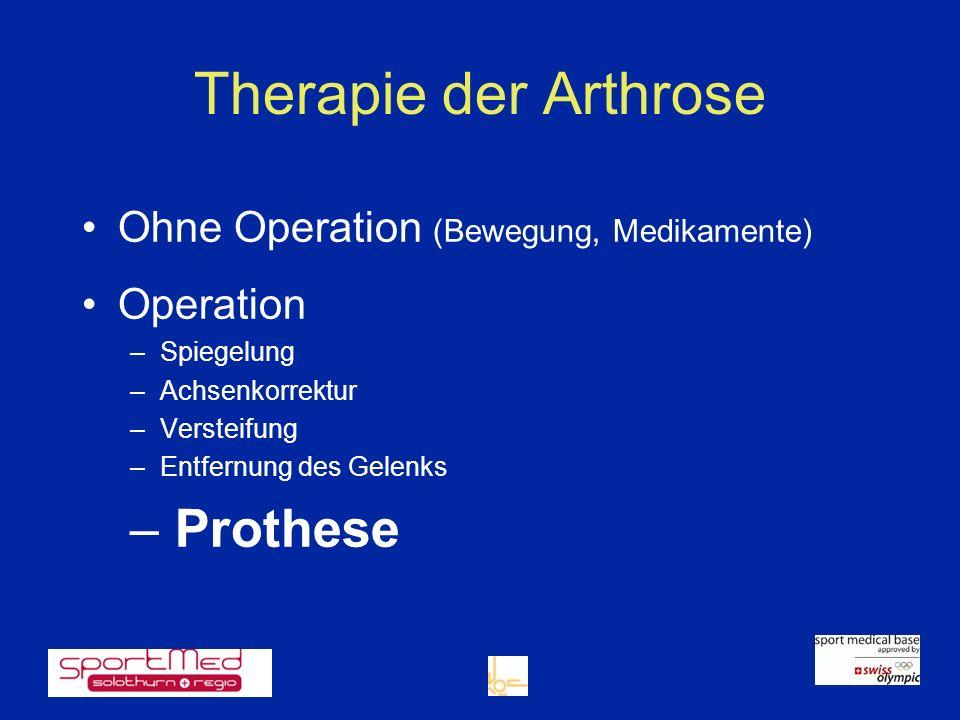 Therapie der Arthrose Ohne Operation (Bewegung, Medikamente) Operation –Spiegelung –Achsenkorrektur –Versteifung –Entfernung des Gelenks – Prothese