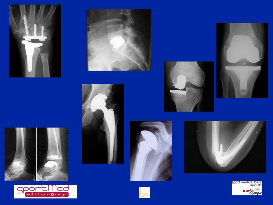 Faktoren für gutes Operations Resultat gute Verankerung der Prothese Zementiertechnik Press fit (Verklemmen)