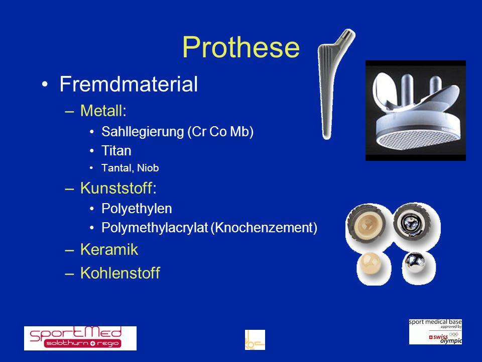 Prothese Fremdmaterial –Metall: Sahllegierung (Cr Co Mb) Titan Tantal, Niob –Kunststoff: Polyethylen Polymethylacrylat (Knochenzement) –Keramik –Kohle