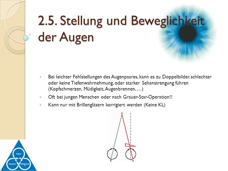 Bei leichter Fehlstellungen des Augenpaares, kann es zu Doppelbilder, schlechter oder keine Tiefenwahrnehmung, oder starker Sehanstrengung führen (Kop
