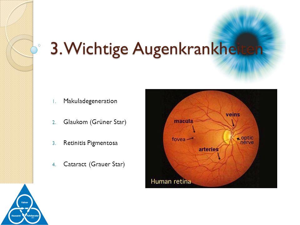 1. Makuladegeneration 2. Glaukom (Grüner Star) 3. Retinitis Pigmentosa 4. Cataract (Grauer Star) 3. Wichtige Augenkrankheiten