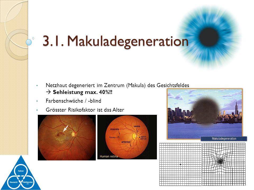 Netzhaut degeneriert im Zentrum (Makula) des Gesichtsfeldes Sehleistung max. 40%!! Farbenschwäche / -blind Grösster Risikofaktor ist das Alter 3.1. Ma