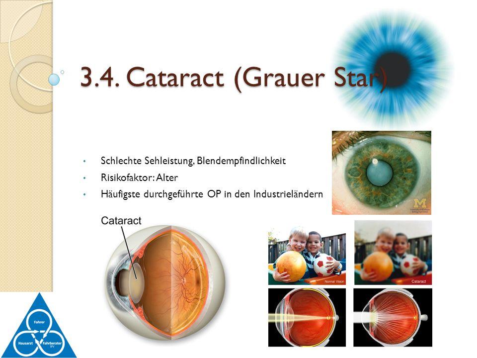 Schlechte Sehleistung, Blendempfindlichkeit Risikofaktor: Alter Häufigste durchgeführte OP in den Industrieländern 3.4. Cataract (Grauer Star)