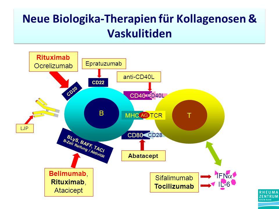 Neue Biologika-Therapien für Kollagenosen & Vaskulitiden CD40 CD40L CD80 CD28 T CD20 Rituximab Ocrelizumab LJP BLyS, BAFF, TACI B-Zell Reifung / Aktivität Belimumab, Rituximab, Atacicept CD22 Epratuzumab B MHCTCR AG anti-CD40L Abatacept IFN IL-6 Sifalimumab Tocilizumab