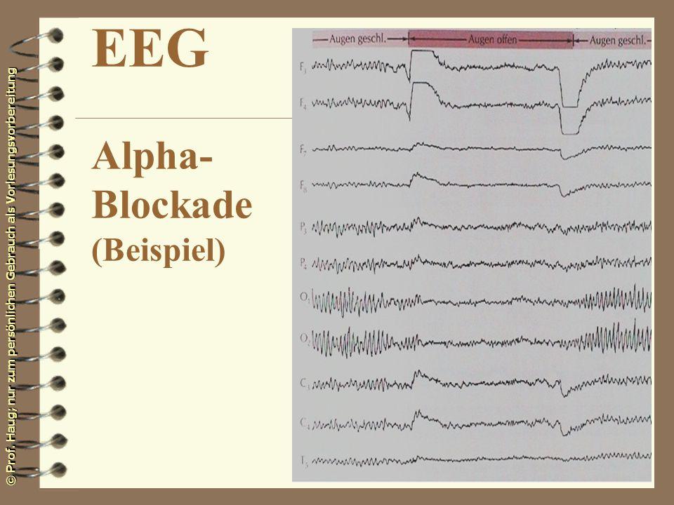 © Prof. Haug; nur zum persönlichen Gebrauch als Vorlesungsvorbereitung EEG Alpha- Blockade (Beispiel)