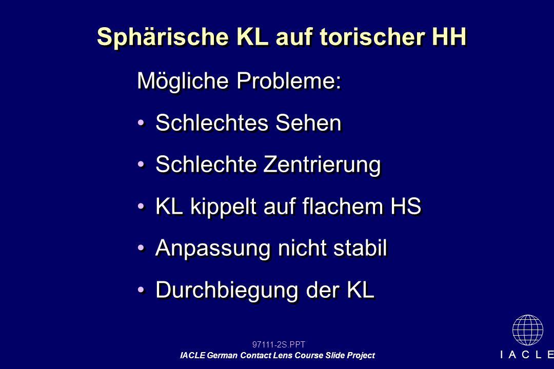 97111-73S.PPT IACLE German Contact Lens Course Slide Project I A C L E Sphärische Anpasslinsen Falls die Überrefraktion mit einer sphärischen KL auf einer torischen HH zu einem Restzylinder der finalen KL führt, ist nur der induzierte Zylinder der Rückfläche zu kompensieren.
