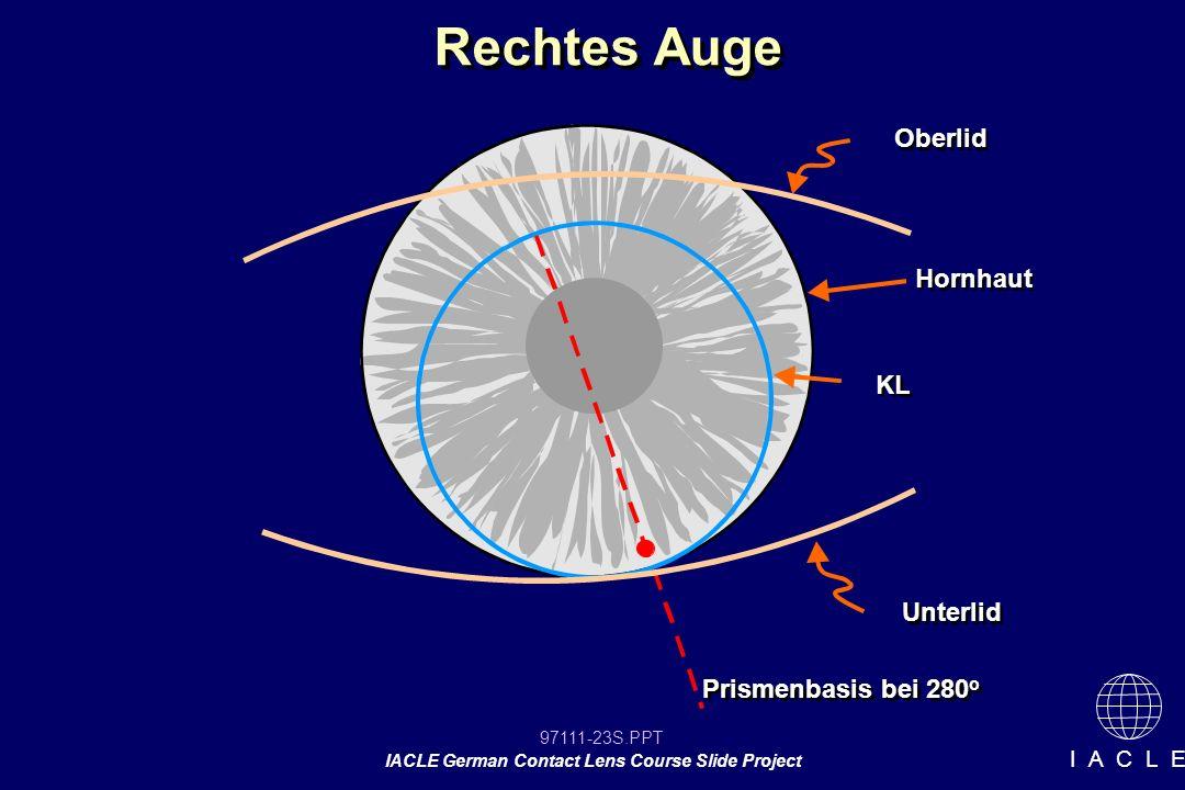 97111-23S.PPT IACLE German Contact Lens Course Slide Project I A C L E Rechtes Auge Oberlid Hornhaut Unterlid KL Prismenbasis bei 280 o