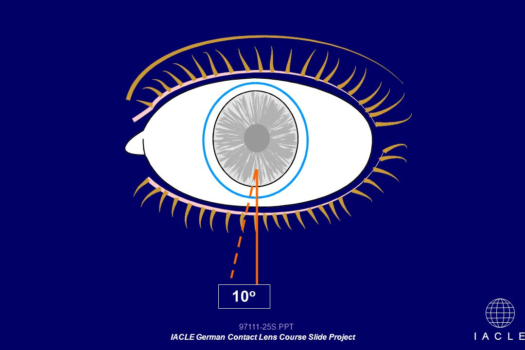 97111-25S.PPT IACLE German Contact Lens Course Slide Project I A C L E 10 o