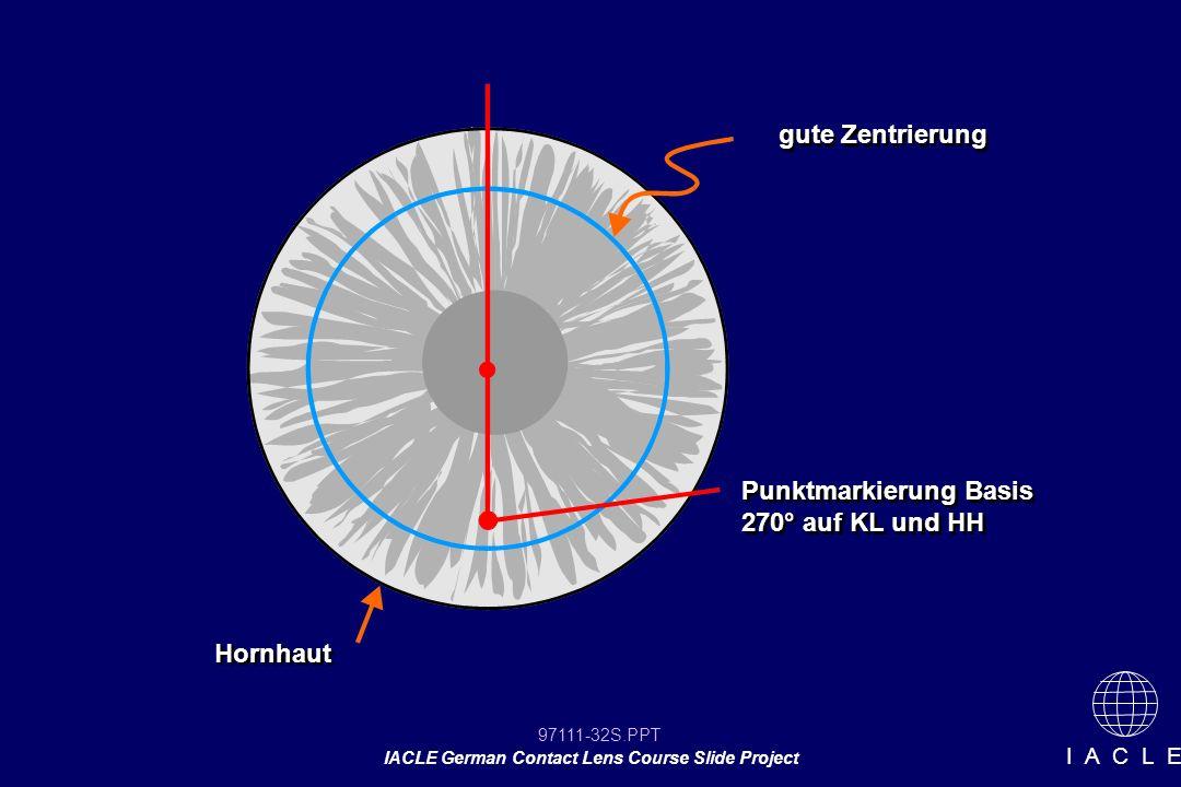 97111-32S.PPT IACLE German Contact Lens Course Slide Project I A C L E gute Zentrierung Punktmarkierung Basis 270° auf KL und HH Hornhaut
