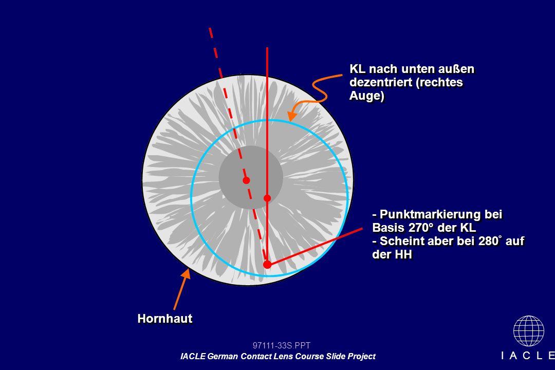 97111-33S.PPT IACLE German Contact Lens Course Slide Project I A C L E KL nach unten außen dezentriert (rechtes Auge) - Punktmarkierung bei Basis 270° der KL - Scheint aber bei 280 ° auf der HH - Punktmarkierung bei Basis 270° der KL - Scheint aber bei 280 ° auf der HH Hornhaut