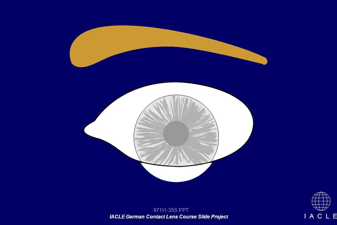 97111-35S.PPT IACLE German Contact Lens Course Slide Project I A C L E