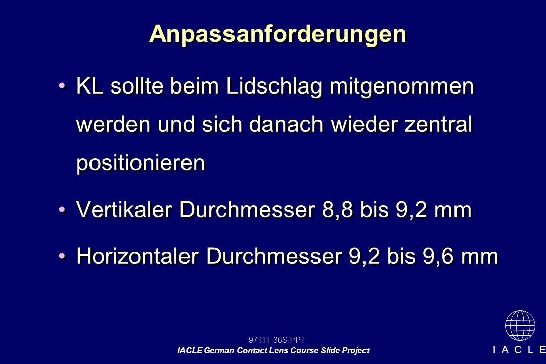 97111-36S.PPT IACLE German Contact Lens Course Slide Project I A C L E Anpassanforderungen KL sollte beim Lidschlag mitgenommen werden und sich danach wieder zentral positionieren Vertikaler Durchmesser 8,8 bis 9,2 mm Horizontaler Durchmesser 9,2 bis 9,6 mm KL sollte beim Lidschlag mitgenommen werden und sich danach wieder zentral positionieren Vertikaler Durchmesser 8,8 bis 9,2 mm Horizontaler Durchmesser 9,2 bis 9,6 mm